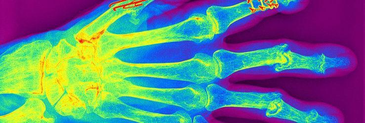 Ultraschalluntersuchungen zur Diagnostik von Veränderungen an Weichteilen im Bereiche der Gelenke.